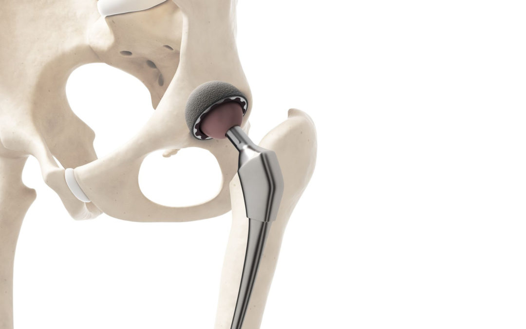 Nueva Normativa sobre Prótesis